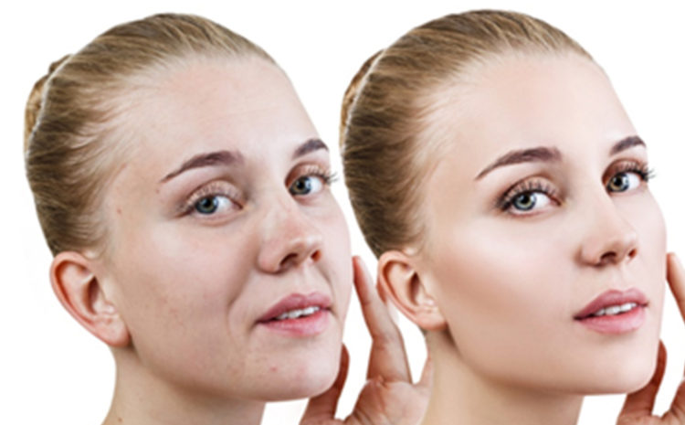 How to get rid of Skin Tightening ?