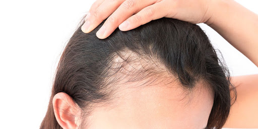 TREATMENT FOR ANDROGENETIC ALOPECIA USING HAIR TRANSPLANT