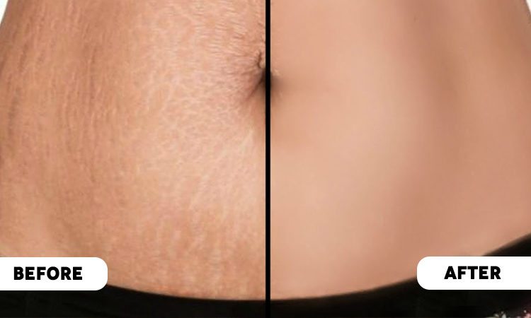 How to get reduction of Stretch Marks? – Fascino Body Care