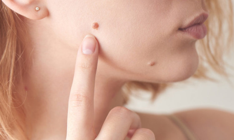 What are the symptoms, causes, treatments for warts?