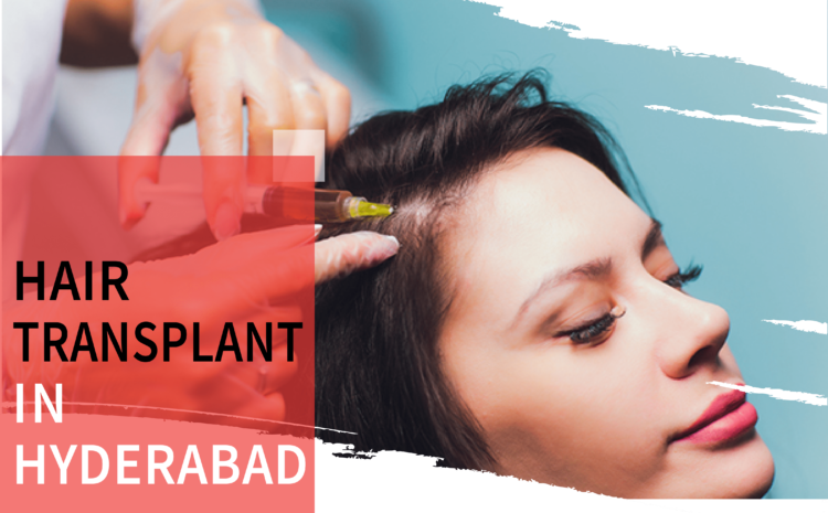 Hair Transplant in Hyderabad.